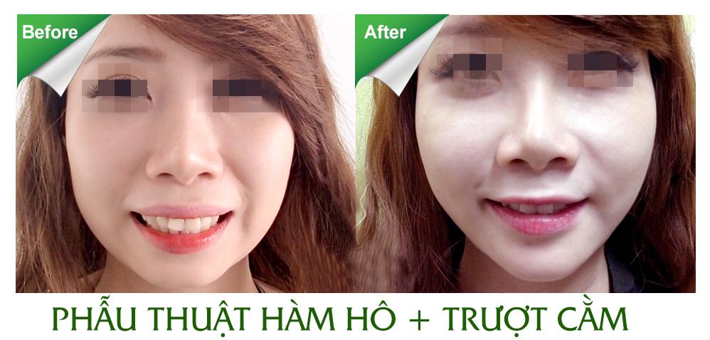 Phẫu thuật hàm hô TPHCM